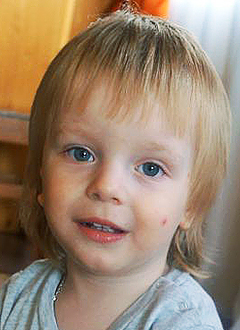 Dima Kaplin, 2 years old, cholesteatoma (tumor formation), microtia and atresia (hypoplasia) of the right ear canal, needs surgery at the California Ear Institute (Palo Alto, USA), course treatment required, <nobr>8,750.00 USD</nobr>